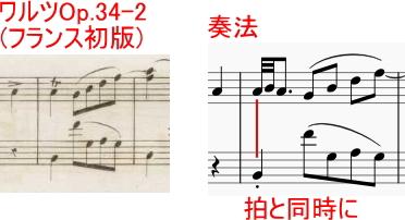 ショパンの装飾音03~短いトリル~