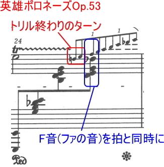 ショパンの装飾音07~任意の装飾音(ターン・カデンツァ)~